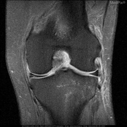 1)1	This is a T2 weighted coronal image of the Left knee with fat saturation showing abnormal signal in the medial meniscus which clearly contacts the articular surface.  This is consistent with a meniscal tear.  Also note edema surrounding the lateral collateral ligament (sprain)