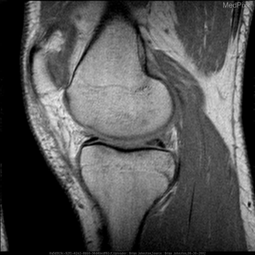 2)	This Sagittal proton density image of the left knee reveals linear abnormal signal in the posterior horn of the medial meniscus