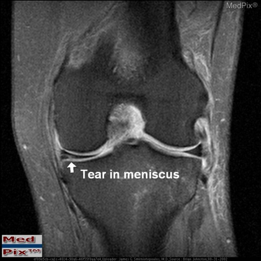 This is a T2 weighted coronal image of the Left knee with fat saturation showing abnormal signal in the medial meniscus (arrows) which clearly contacts the articular surface.  This is consistent with a meniscal tear.  Also note edema surrounding the lateral collateral ligament (sprain)