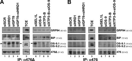 Trapping of BACE476Δ by OS-9.1 upon inactivation of the HRD1 pathway. (A) BACE476Δ was immunoisolated from detergent extracts of cells incubated with a scrambled siRNA, and siRNA targeting HRD1, GP78, GP78, and HRD1 (lanes 1–4) and SEL1L, OS-9, XTP3-B, and XTP3-B + OS-9 (lanes 6–9, respectively). Proteins were separated in SDS polyacrylamide gels and transferred on PVDF. The membranes were blotted with antibodies recognizing endogenous GRP94, BiP, OS-9.1, and OS-9.2 and BACE476Δ as a loading control. (B) Same as described in A for BACE476. Arrowheads indicate the coprecipitated OS-9.1. TCE, total cell extract; IP, immunoprecipitation.
