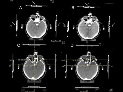 Verification of isocenter position accuracy. During CT localization (A) and CT verification (B) the patient is positioned on the CT couch with the target positioner box aligned with anterior and lateral lasers using the radio-opaque markers (arrows). The amount of isocenter shift between CT localization (planning CT) (C) and CT verification (D) in relation to anatomical skull base cranial structures was then evaluated directly on the CT scans.