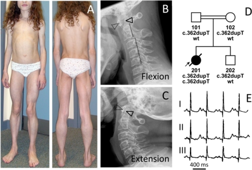 Phenotype of patient FII:201 from the UK.(A) Image of the 12-year-old patient with generalized lack of subcutaneous fat and prominent muscle hypertrophy especially of the thigh (see also Figure S1), masticatory and paraspinal muscles. The patient presented with spinal rigidity and lumbar hyperlordosis. The veins generally appeared thickened and prominent (phlebomegaly). Atlanto-axial instability of the patient during flexion (B), and extension (C) of the cervical spine. In flexion, the gap between the anterior arc of the atlas (dotted triangle) and the odontoid process of the axis (closed triangle) opens up 7 mm. The posterior arch of the axis appears dysplastic. During flexion the posterior margins of the cervical vertebrae are misaligned (dotted line). There is marked loss of bone mineral density and increase of translucency of the cervical vertebrae due to osteoporosis. (D) Pedigree of the consanguineous family and genotypes of the family members. (E) ECG of the patient with a QTc (Bazett) of 501 ms.