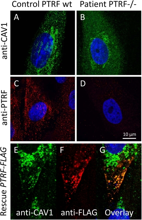Cell-biological consequences of PTRF-CAVIN depletion.(A) Confocal microscopic image of the punctate distribution of caveolin-1 which labels the caveolae on the surface of a fibroblast. (B) Severe reduction of the punctate caveolin-1 distribution in the absence of PTRF-CAVIN and its unstructured distribution within the cytoplasm. (C) Normal punctate distribution of PTRF-CAVIN on the fibroblast surface. (D) Absence of all PTRF-CAVIN immunoreactivity on a patient fibroblast. (E–G) Each panel depicts two patient fibroblasts, one untransfected (right) and one transfected with PTRF-FLAG construct (left). In the untransfected cell caveolin-1 is only found in the Golgi-apparatus. Reexpression of PTRF-CAVIN in the left cell redirects the caveolin-1 staining to the caveolae in the cell periphery where the two proteins co-localize (yellow dots in panel G).