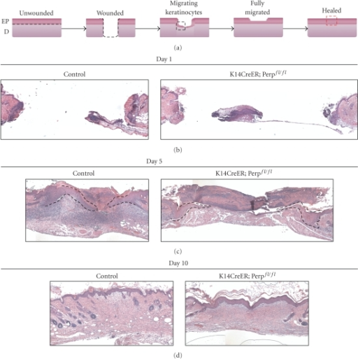 Wounded K14CreER;  Perpfl/fl mice exhibit delays in reepithelialization. (a) Cartoon sketch depicting the different stages occurring during the wound healing process. The black dashed line marks the boundary between the epidermis and dermis. Black dashed box demarcates region with migrating keratinocytes, as shown in panel (c). Red dashed box represents region of fully closed wound, as shown in panel (d). EP signifies epidermis and D, dermis. (b) Representative H&E-stained section of open wounds from tamoxifen-injected control (Perpfl/fl) and K14CreER;  Perpfl/fl mice 1 day post wounding. (c) Representative H&E-stained section of wounds from tamoxifen-injected control (Perpfl/fl) and K14CreER;  Perpfl/fl mice 5 days post wounding. The migrating epithelial sheets are outlined by the black dashed line. (d) Representative H&E-stained section of closed wounds from tamoxifen-injected control (Perpfl/fl) and K14CreER;  Perpfl/fl mice 10 days post wounding. Sizes of boxes in (b) and (c) were determined by the edges of the wound, as marked by the panniculus carnosus.