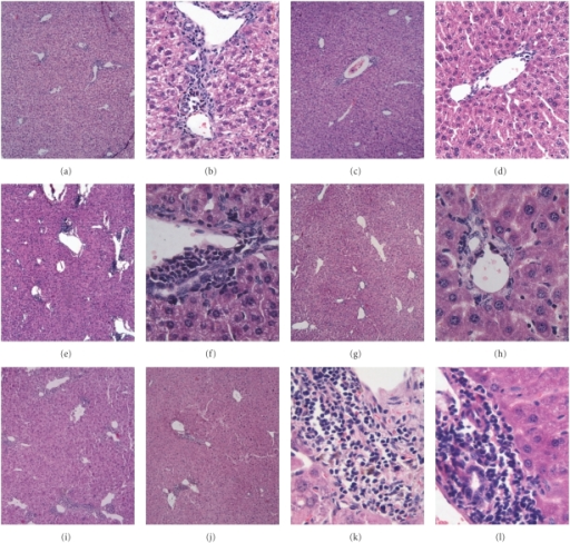 Serial observation of mononuclear cells infiltration in the liver tissue. Female C57BL/6 mice were injected with 5 mg/kg of poly I:C twice a week for 24 consecutive weeks. Liver specimens were collected at 8 weeks (a–d), 16 weeks (e–h), and 24 weeks (i–l) after the start of poly I:C injection and were underwent HE staining. Different degrees of lymphocytic infiltration surrounding the small bile ducts were detected within the portal tracts. A representative staining pattern from each period is shown as following: (a, b) Week 8 of WT PBC mice. (c, d) Week 8 of CXCR3−/− PBC mice. (e, f) Week 16 of WT PBC mice. (g, h) Week 16 of CXCR3−/− PBC mice. (I, k) Week 24 of WT PBC mice. (j, l) Week 24 of CXCR3−/− PBC mice. Note: Magnification: (a, c, e, g, i, j) × 5; (b, d, f, h, k, l) × 20, × 40.