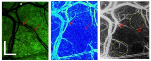 Comparison of LSI and IF-IBDV images of microvascular network in DSWC model, after laser irradiation of select vessels. (a) With green filtering of broadband light used to transilluminate the DSWC, the blood-vessel architecture is clearly visible. (b) With LSI, vessels containing flowing blood are displayed, with an absence of flow in the irradiated vessels. (c) With IF-IBDV method, a similar functional map of the vasculature is obtained, with enhanced visualization of smaller arteriolar, venules, and capillaries. The scale bars in (a) represent 1 mm.