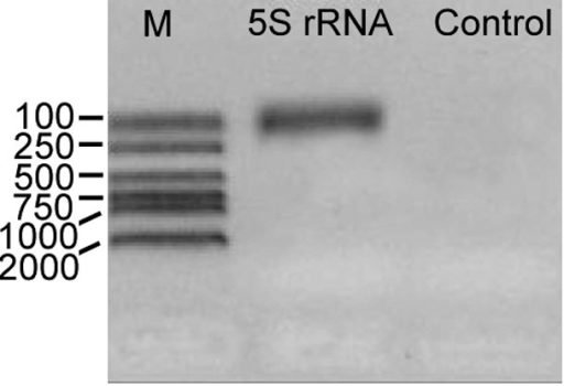 Results of the RT-PCR experiment of the identified G. lamblia WB 5S rRNA gene.M, marker.
