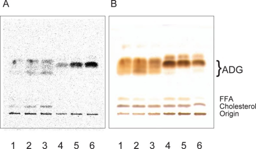 "Thin-layer chromatogram of lipids in the Harderian glands of golden hamsters.Golden hamsters were injected with 2.5 μCi of [U-14C]leucine into peritoneum. Lipids in the gland were obtained and developed on a TLC plate. A, a representative autoradiogram of a plate. B, H2SO4 detection of lipids on the same plate in panel A. Lipids obtained at 1 h after injection were spotted on lanes 1 and 4, at 3 h on lanes 2 and 5, and at 6 h on lanes 3 and 6. Lanes 1 to 3 contained male lipids, while lanes 4 to 6 contained female lipids. ""ADG"" and ""FFA"" indicate the positions of 1-alkyl-2,3-diacylglycerol and free fatty acids, respectively."