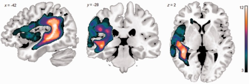 Lesion overlap map for the 12 participants with Wernicke's aphasia. The lesion distribution mirrors previous studies of Wernicke's aphasia, with lesions centred on posterior perisylvian cortical and subcortical regions. Colour bar indicates the number of participants with a lesion at each voxel (min = 3; max = 12).