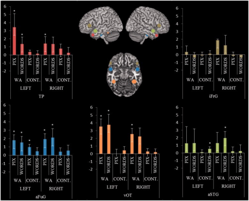 Region of interest analyses. Graphs display mean beta values for each group in each region of interest. Patients with Wernicke's aphasia (WA) demonstrated significant activation for picture and written word semantic decisions in the anterior fusiform gyrus and ventral occipital-temporal lobe bilaterally and in the left lateral polar region. Written word decision produced additionally significant results in the right anterior superior temporal gyri/sulci. aFuG = anterior fusiform gyrus; aSTG = anterior superior temporal gyrus; TP = temporal pole; vOT = ventral occipital-temporal lobe; iFrG = inferior frontal gyrus. *P < 0.05, one sample t-test.
