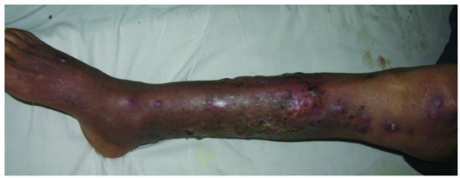 Improvement following treatment. The patient's condition significantly improved with diminishing cutaneous lesions following a week of treatment with intravenous sulfamethoxazole 800 mg twice daily and imipenem 1 g twice daily.