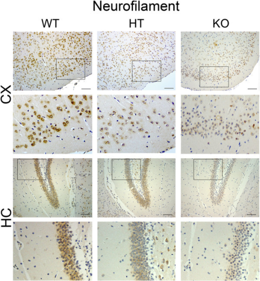 Cytokine production in response to inflammatory stimuli is enhanced in A20 deficient primary astrocytes. (A) TNF and (B) IL-6 levels, measured by ELISA, in cell culture supernatant from A20 wild type (WT), heterozygous (HT) and knockout (KO) mouse primary astrocytes following 24 hour stimulation with LPS (10 μg/mL). (C) IL-6 levels measured by ELISA, in cell culture supernatant from WT, HT and KO mouse primary astrocytes following 24 hours stimulation with TNF (100 UI/mL). NS: non-stimulated cells. Data represent mean ± SEM of primary astrocytes isolated from littermate pups (WT n = 2; HT n = 8 to 10, KO n = 3 to 4). *P < 0.05, **P < 0.01.