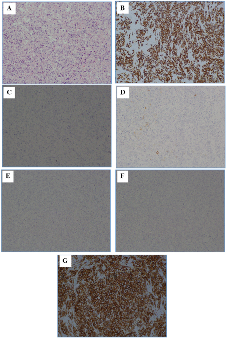 Hematoxylin and eosin (H&E) staining, and various types of immunostaining of the left axillary lymph node mass. (A) H&E; (B) cytokeratin (CK)7; (C) CK20; (D) gross cystic disease fluid protein 15 (GCDFP15); (E) estrogen receptor (ER); (F) progesterone receptor (PgR); and (G) human epidermal growth factor receptor 2 (HER2). The following immunostaining results were obtained: CK7 positive (+), CK20 negative (−), GCDFP15 (partial +), ER (−), PgR (−) and HER2 score (3+). Magnification, ×100.