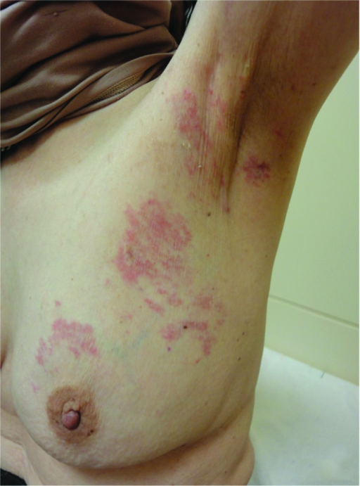 Cutaneous metastases. December 2010: Flat polypoid lesions of eczema appeared in the area between the upper left breast and axilla.