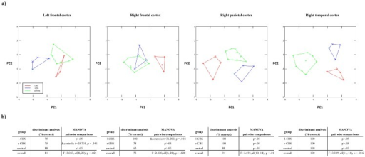 Statistical analysis on brain volumetric differences between l-CBS, r-CBS and healthy controls.a) Two-dimensional canonical analysis of components of significant topographical groups. Euclidean distances were used as measure for differences in local brain volume between CBS groups and controls. b) Results of discriminant analysis and MANOVA.