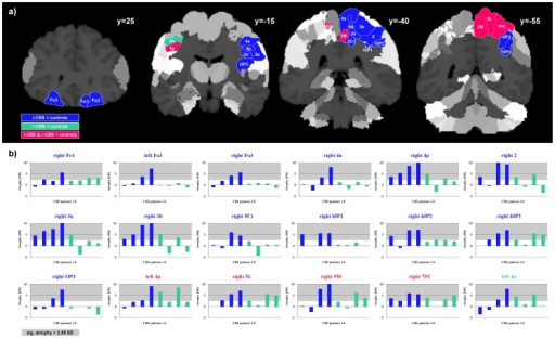 Atrophy patterns in l-CBS and r-CBS groups compared to controls.a) Volumetric differences between patients and controls overlaid on coronal sections of the JuBrain cytoarchitectonic atlas. Colored areas illustrate significant volume reductions in l-CBS (blue), r-CBS (green) or in both CBS groups (pink). b) Each patient's volume reduction (in SD) compared to the control group. Patients 1 to 8 are listed from left to right according to Table 1, with l-CBS patients in blue and r-CBS patients in green. For brain areas that were found to be atrophic in group statistics, titles of the diagrams are printed in blue for the l-CBS group, in green for the r-CBS group and pink for overlap between the l-CBS and r-CBS group. Significant volume reductions of 2.58 SD or more are shaded in grey.