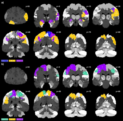Atrophy patterns in l-CBS and r-CBS single cases.Areal volume reductions in CBS patients at t0 and from t0 to t1 overlaid on coronal sections of the JuBrain cytoarchitectonic atlas: Colored areas illustrate a) atrophy of four or more SD in patient 1 and b) patient 5.