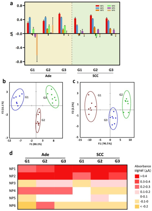 Detection of three grades of Ade and SCC tissue lysates. (a) Change in absorption intensities for three different tissue lysates (normal, Ade and SCC) using the ssDNA-AuNPs-GO sensor array (NP1-NP6). (b) Canonical score plot of the absorbance patterns as obtained from LDA against the three grades of Ade patients. (c) LDA score plot derived from the absorbance changes for the three grades of SCC patients. (d) Heat map derived from absorbance response pattern for different grades of Ade and SCC patients.