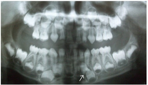 Panoramic radiograph of the patient's brother showing impacted supernumerary tooth.
