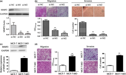 Effects of matrix metalloproteinase 2 (MMP2) on migration and invasion of breast cancer (BC) cells. (a) The siRNA of MMP2 was transfected into SUM1315-bo. This was confirmed at both the gene and protein levels. Si-M1, si-M2, and si-M3 represent the three different siRNA pairs of MMP2. Si-M1 and si-M2 were used in all the subsequent experiments. (b) The invasiveness of MMP2 knockdown SUM1315-bo and the negative control (si-NC) cells were assessed using transwell assays. The invasiveness through 8 μm pore transwells was significantly lower in MMP2 knockdown SUM1315-bo than in the negative control (P < 0.05). Original magnification ×100. (c) The constructed expression vector pEGFP-C2-MMP2 was stably transfected into MCF-7, which was MMP2-negative. Transfection was confirmed at the protein level. (d) The invasiveness of MMP2 overexpressing MCF-7 (MCF7-MO) and the control cells were assessed by transwell assays. The invasiveness through 8 μm pore transwells was found to be significantly higher in MMP2 over-expressing MCF-7 than in controls (P < 0.05). Original magnification ×100.