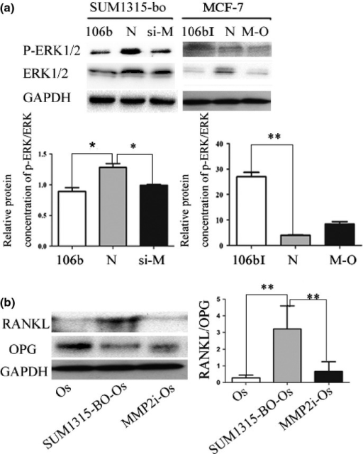 Effects of matrix metalloproteinase 2 (MMP2) on osteoclastogensis and removal of extracellular signal-regulated kinases (ERK) from tumor cells. (a) Western blot showing the level of ERK and p-ERK in the conditioned medium (CM) from SUM1315-bo cells. MiR-106b was shown to directly inhibit MMP2 and consequently decrease ERK and p-ERK expression. *P < 0.05. (b) Alteration of the RANKL/OPG abundance ratio in osteoblasts by MMP2 to favor osteoclast differentiation. RANKL and OPG were detected using immunoblotting in the culture media of HMSC-derived osteoblasts under different CM conditions. The RANKL/OPG ratio of the group of HMSC-derived osteoblasts cells (Os) (RANKL/OPG ratio = 0.28) and the group of HMSC-derived osteoblasts cultured using CM from MMP2 knockdown SUM1315-bo cells (MMP2i-Os) (RANKL/OPG ratio = 0.749) was significantly decreased when compared with the group of HMSC-derived osteoblasts cultured using CM from SUM1315 CM tumor cells (SUM1315-BO-Os) (RANKL/OPG ratio = 3.17). **P < 0.01.
