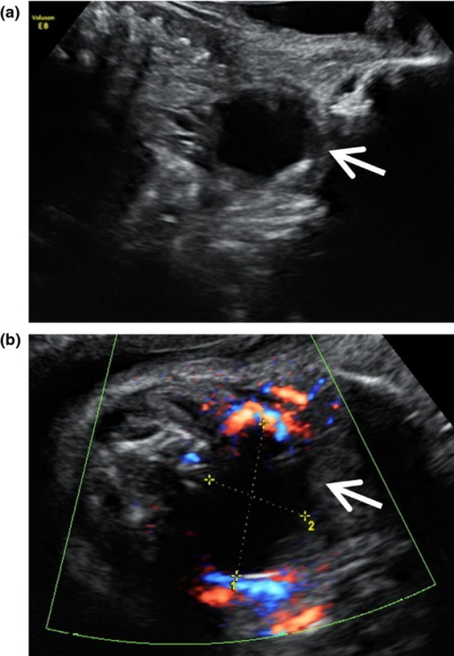 Prenatal ultrasonography showed that the fetus had a 3 × 2×2 cm hypoechoic simple cystic mass in the pharyngeal region (A), without signs of internal blood flow by Doppler examination (B).