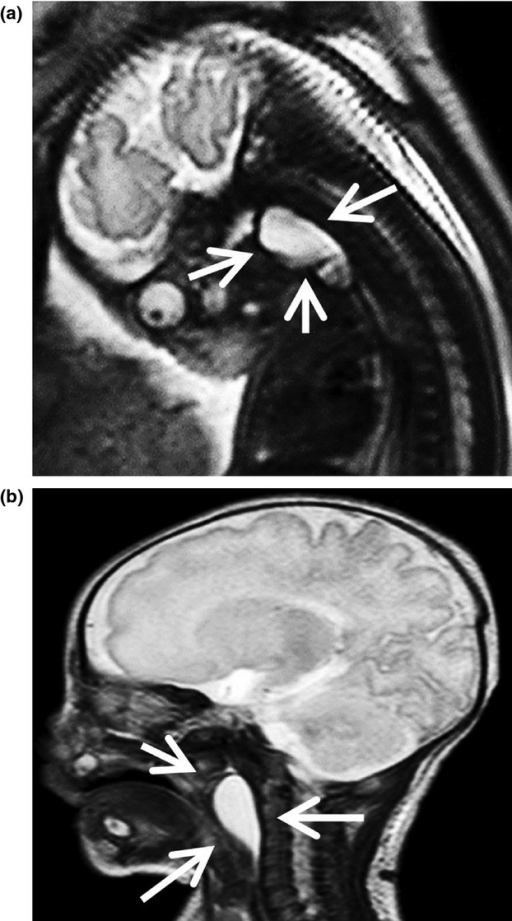 (A) Prenatal magnetic resonance imaging showed a simple cystic mass (arrows) in the posterior pharyngeal gap, a mass that showed marked extrinsic compression of the airway. (B) Magnetic resonance imaging showed a simple cystic mass in the left side of the posterior pharyngeal gap, a mass that showed compression of the airway mostly at the level of the oropharynx.