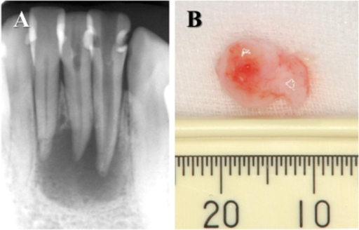 Specimens used in this study.(A) X-ray observation of periapical lesions caused at lower incisal teeth. Radiolucency around the apex showed alveolar bone resorption. (B) Periapical lesion surgically removed from a patient showing at (A).