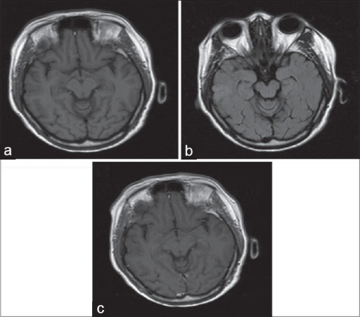 Images (a-c) revealing a lesion in right temporal lobe, involving both gray and white matter, which is hyposignal in T1, and hypersignal in T2, and fluid-attenuated inversion-recovery images