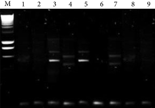 PCR results for adenovirus. Column M control. Columns 3 and 5 positive. Columns 1, 2, 6, and 9 negative. Columns 4 and 7 atypical.
