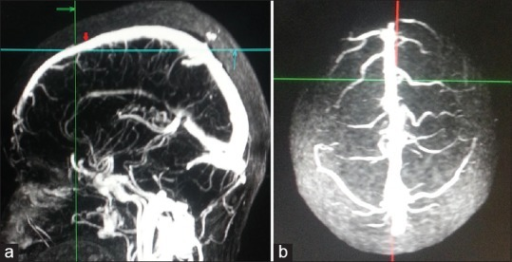 Methodology to mark anterior third superior sagittal sinus. (a) Point at the level of coronal suture on superior sagittal sinus was marked (red arrow) in midsagittal three-dimensional contrast-enhanced magnetic resonance venogram. 1 cm anterior to it marks the posterior limit of anterior third superior sagittal sinus (intersection of green and blue lines). (b) Corresponding superior view showing anterior third of superior sagittal sinus