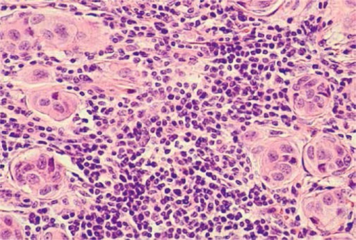 Microscopic image of axillary lymph node cells with the presence of cancer cells – breast cancer metastases. The material for histopathological evaluation was collected during sentinel lymph node biopsy