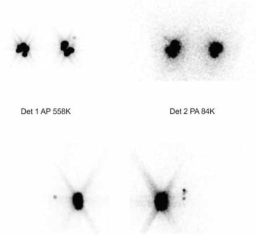 Lymphoscintigraphy in a patient with bilateral breast cancer – planar images: A-P, P-A and lateral projections. Foci of increased tracer accumulation were visualized backward from the site of radiopharmaceutical administration, indicating the presence of axillary sentinel lymph nodes