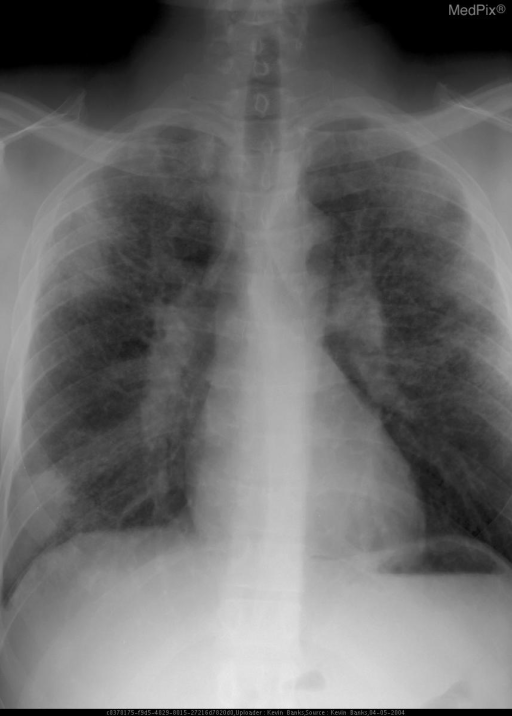 Frontal view of the chest demonstrates marked interstitial lung disease with concurrent peripheral pulmonary masses and hilar and mediastinal lymphadenopathy.