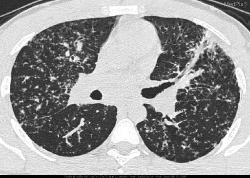 Axial high-resolution CT demonstrates nodular interstitial lung disease with concurrent pulmonary masses and lymphadenopathy.