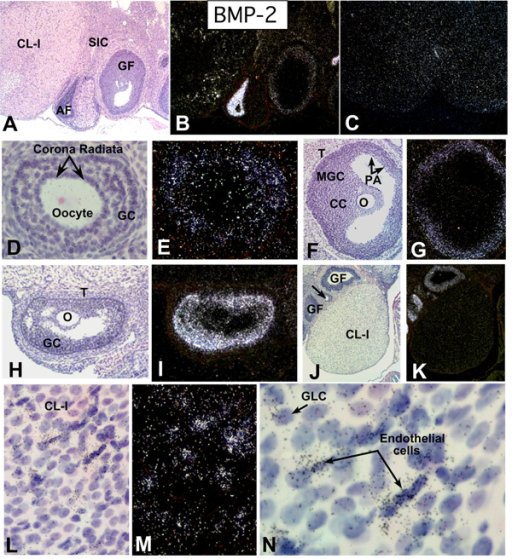 In situ hybridization of BMP-2 mRNA in the ovaries of adult cycling rats. Brightfield (A, D, F, H, J, L, N) and Darkfield (B, C, E, G, I, K, M). A, B: Sections from a DII 1100 h ovary (4X); new corpus luteum (CL-I); atretic follicle (AF); secondary interstitial cells (SIC); healthy Graafian follicle (GF); C: Negative control hybridized with sense BMP-2 cRNA probe; D, E: Secondary follicle with 3–5 layers of GCs at DII 1100 h (20X). Note positive membrana GC at periphery. F, G: Dominant follicle at DII 1100 h (10X); Positive membrana GC (MGC); Negative oocyte (O), cumulus GC (CC), periantral GC (PA) and theca (T); H, I: Atretic follicle at P 1000 h showing strongly positive GC (10X); J, K: Negative newly formed CL-I at E 0200 h (4X); Positive GF and preantral follicle (arrow); L, M: New CL-I after initiation of luteolysis at DII 1100 h showing clusters of positive cells (20X); N: Higher magnification (40X) of CL-I in L showing positive endothelial and granulosa lutein cells (GLC).