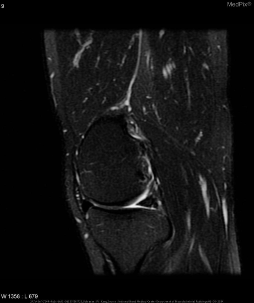 Within the substance of the posterior horn of the medial meniscus, there are two small lesions which demonstrate a low T1 and T2 signal rim with homogeneous high T1 signal equal to that of marrow fat which demonstrates decrease in signal on T2 fast-spin echo with fat-saturation images.
