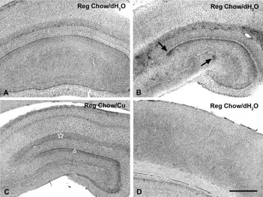 Staining Microglia Lectin Staining For Microglia