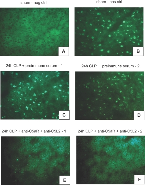 Induction of C5a dependent apoptosis in adrenal medullae after CLP.(A) Analysis of adrenal medulla in sham operated animals (neg ctrl) by the TUNEL technique. (B) Adrenal medullae of sham operated animals preincubated with DNAse before TUNEL staining served as positive control. (C, D) Examination of adrenal medullae obtained 24 hrs after CLP by TUNEL assay. (E, F) Adrenal medullae from animals with dual-blockade of C5aR and C5L2 acquired 24 hrs after CLP. Slides are representative of n≥3 animals per condition.