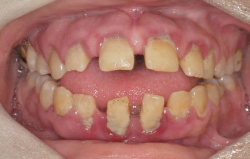 anterior open bite and spacing is evident openi