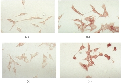 Anti-TSP-1 antibody inhibition of integrin α6 production in TSP-1 stably transfected cells. Cells were grown in six well chamber slides in either serum-free media or media containing either 10 μg/mL control IgG or 10 μg/mL goat antihuman TSP-1 IgG, fixed, and stained with rat α6 integrin IgG as described in Section 2. Cells were photographed at 200X magnification. (a) TH5 cells (vector control).  (b) TH26 cells (high TSP-1 producer).  (c) TH26 cells plus anti-TSP-1 antibody.  (d) TH26 cells plus control IgG.