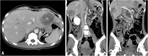 Afferent loop obstruction in a 35-year-old woman after Billroth-II gastrojejunostomy. (A) Axial plane of MDCT shows bowel wall thickening (arrow) instead of appreciable lobulated mass-like lesion at the anastomosis area. (M: liver metastasis) (B) Coronal plane of MDCT clearly demonstrates the lobulated contour of soft-tissue mass (arrows) at the anastomosis, suggesting local recurrence. (C) Another coronal plane of MDCT demonstrates the fluid-filled C-shaped afferent loop (C), in combination with valvulae conniventes projecting into the lumen (arrowheads). This MDCT finding is highly suggestive of bowel obstruction. The endoscopic biopsy confirmed the MDCT diagnosis of local recurrence inducing afferent loop syndrome. MDCT, multidetector-row computed tomography.