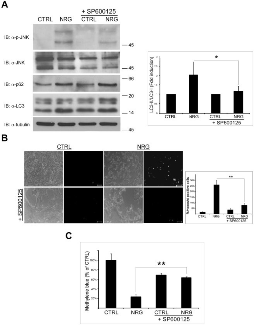 SP600125 inhibits NRG-induced autophagy and cell death.(A) LNCaP cells were treated with 100 ng/ml NRG for 24 h with or without 20 µM SP600125. Whole cell lysates were prepared and subjected to an immunoblot analysis with anti-LC3, anti-p62, anti-p-JNK and anti-JNK antibodies. Left panel, representative results. Right panel, densitometric analysis is presented as fold induction over the control untreated cells (n = 5; means ± S.D; *p<0.05). (B) LNCaP cells were treated with 100 ng/ml NRG in the presence or in the absence of 20 µM SP600125 for 60 h. The cells were stained with the fluorescent DNA dye bisbenzimide (Hoecsht 33258, 1 µg/ml) to assess the number of dying cells. Following staining, the cells were photographed using Olympus optical inverted phase-contrast microscope Model IX70 (20×magnification; scale bar, 50 micrometer). Left panel, representative images are shown. Right panel, percentage of dying cells was estimated by counting the number of Hoecsht-positive cells compared to the number total cells in each field (10–15 fields for each treatment, 100–200 cells per field). Results are presented as mean ± S.D (**p<0.0001). (C) LNCaP cells were tested for cell viability using the methylene blue staining assay. Cells were treated with 100 ng/ml NRG in the presence or in the absence of 20 µM SP600125. Methylene blue assay was performed 60 h later. Results are presented as % of control, and are the mean ± S.D of 4–6 determinations (**p<0.0001). This experiment was repeated three times with similar results.