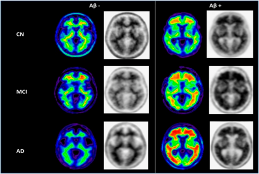 Example images of Aβ− and Aβ+ subjects clinically classified as CN, MCI and AD. Normalized SUVR images (color) and gray scale images (used for visual interpretation of Aβ− vs Aβ+ status) from representative subjects. Note the absence of gray matter uptake and the difference in average cortical SUVR in the Aβ− vs Aβ+ classified scans. The color images are shown for illustrative purposes.