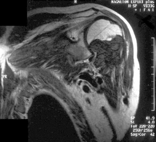 MRI of shoulder region showing a soft tissue tumour with remarkably low signal intensity in T1-weighted spin-echo MRI.