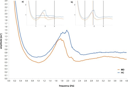 Spectral analysis of acceleration (frequency and amplitude) of MD patients at the beginning of treatment (MD) and healthy controls (HC) captured with the vertical axes of the chest-accelerometer.Mean amplitude values (in au1; grey and black horizontal resp.) as well as the group centroid frequency (in Hz; grey and black vertical line resp.) for the whole spectrum of walking (1–3Hz) are depicted in Fig 1a, 1b, respectively. 1arbitrary unit: values are based on g but attenuated due to the computation of the spectrum and the nonstationarity of the data.