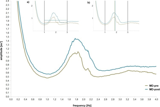 Spectral analysis of acceleration (frequency and amplitude) of MD patients at the beginning (MD-pre) and after 4 weeks (MD-post) of inpatient treatment captured with the vertical axes of the chest-accelerometer.Mean amplitude values (milli-g; grey and black horizontal lines resp.) as well as the group centroid frequency (in Hz; grey and black vertical lines resp.) for the whole spectrum of walking (1–3Hz) are depicted in Fig 3a, 3b, respectively. 1arbitrary unit: values are based on g but attenuated due to the computation of the spectrum and the nonstationarity of the data.