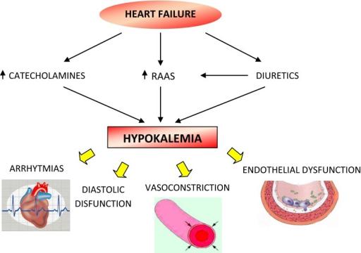 hypokalemia in heart failure. raas renin–angiotensin  | open-i, Skeleton