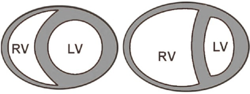 (Left panel) Normal crescent shape of the RV. (Right panel) Dilated RV with D-shape of the LV and flattening of the septum.
