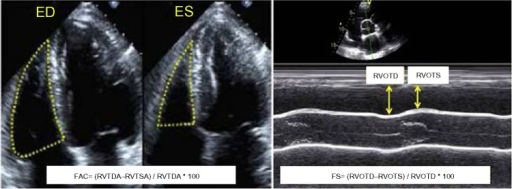 Fractional area change (FAC; left panel) and fractional linear shortening (FS; right panel).Abbreviations: RVTDA, RV tele-diastolic area; RVTSA, RV tele-systolic area; RVOTD, RVOT diameter in diastole; RVOTS, RVOT diameter in systole.